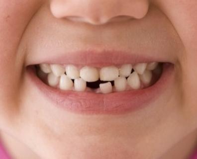 I denti da latte