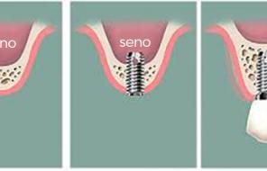 Rialzo del seno mascellare